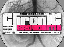 Chronic bronchitis von Stuart Croft
