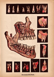 Diseases-of-the-teeth