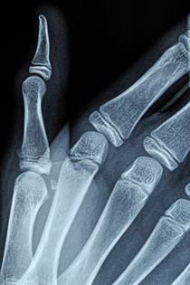 X-ray image of boy's hand von Sami Sarkis Photography