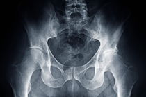 Hip X-ray by Sami Sarkis Photography
