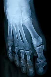 X-ray image of mature man's feet von Sami Sarkis Photography